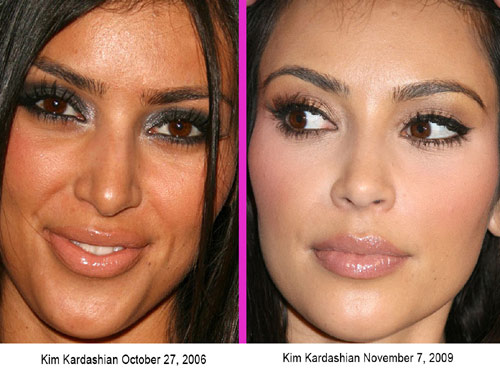 kim kardashian plastic surgery before and after 2010. kim kardashian is not a